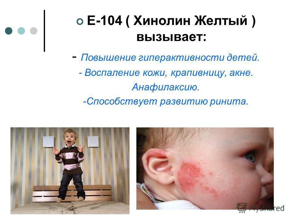 Е-104 ( Хинолин Желтый ) вызывает: - Повышение гиперактивности детей. - Воспаление кожи, крапивницу, акне. Анафилаксию. -Способствует развитию ринита.