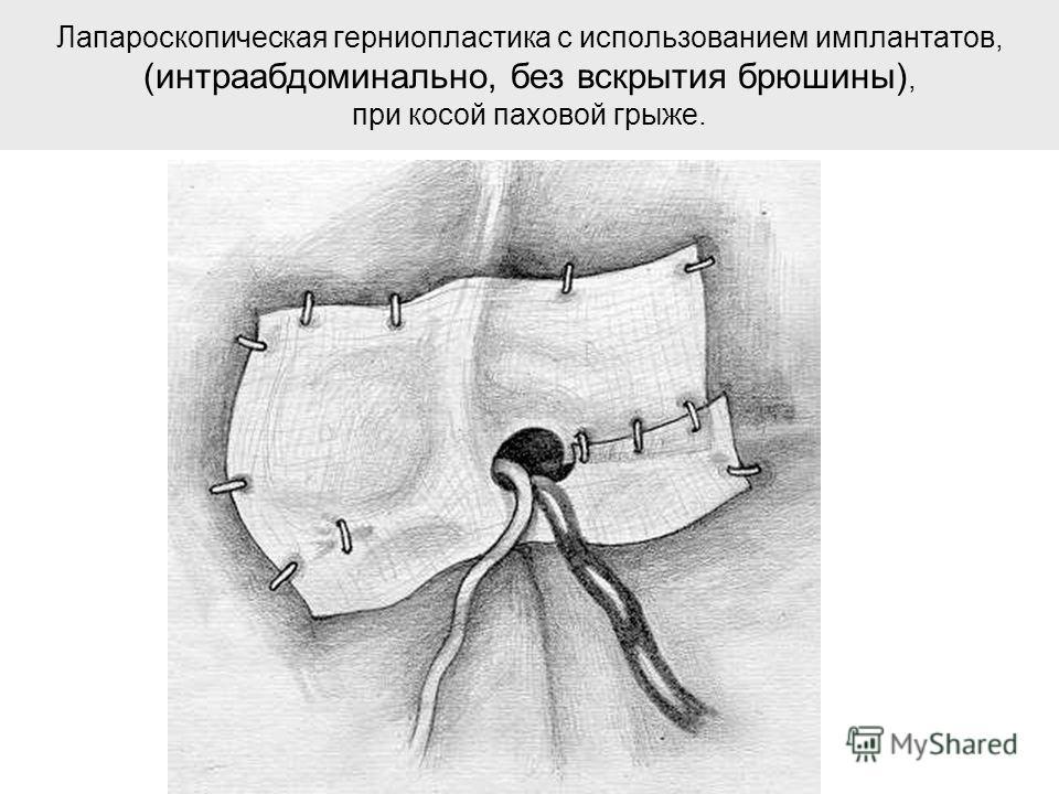 Лапароскопическая герниопластика с использованием имплантатов, (интраабдоминально, без вскрытия брюшины), при косой паховой грыже.