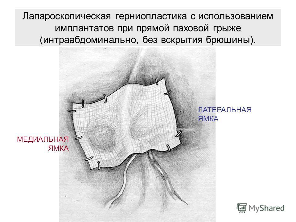 Лапароскопическая герниопластика с использованием имплантатов при прямой паховой грыже (интраабдоминально, без вскрытия брюшины). ЛАТЕРАЛЬНАЯ ЯМКА МЕДИАЛЬНАЯ ЯМКА