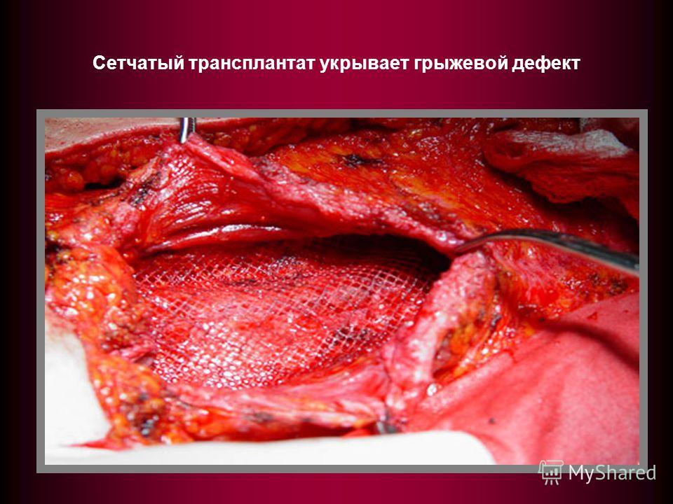 Сетчатый трансплантат укрывает грыжевой дефект