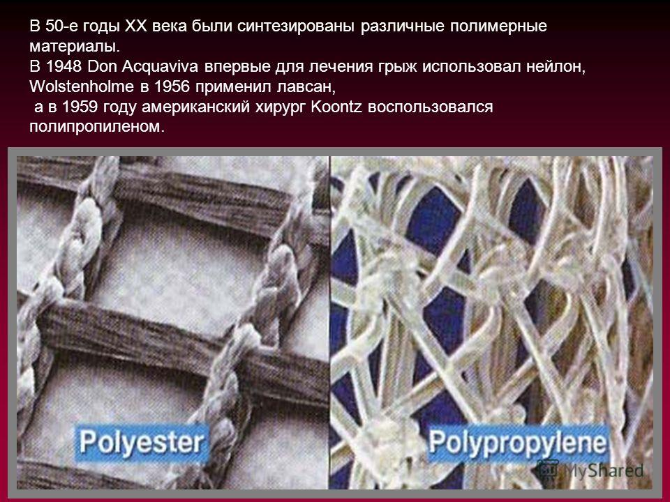 В 50-е годы XX века были синтезированы различные полимерные материалы. В 1948 Don Acquaviva впервые для лечения грыж использовал нейлон, Wolstenholme в 1956 применил лавсан, а в 1959 году американский хирург Koontz воспользовался полипропиленом.