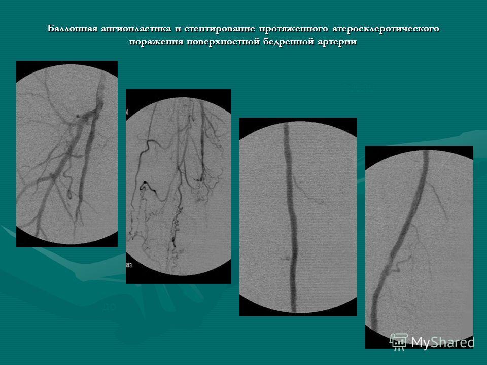 Баллонная ангиопластика и стентирование протяженного атеросклеротического поражения поверхностной бедренной артерии до после