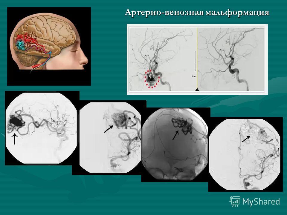 Артерио-венозная мальформация