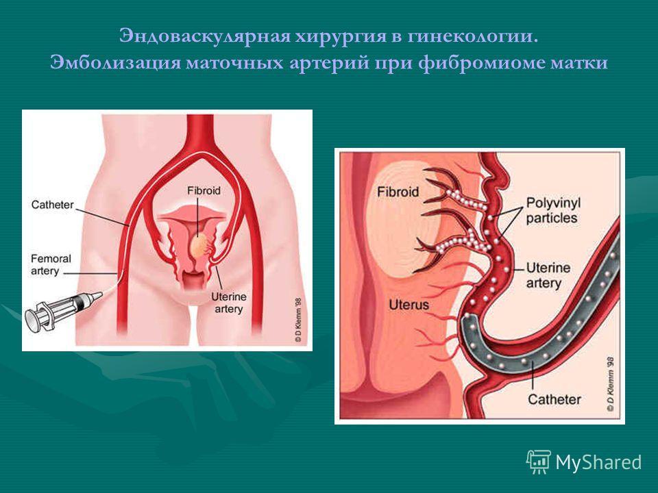 Эндоваскулярная хирургия в гинекологии. Эмболизация маточных артерий при фибромиоме матки