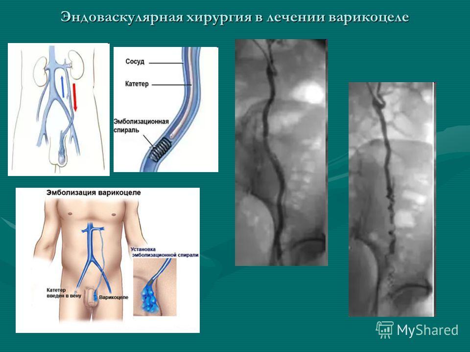 Эндоваскулярная хирургия в лечении варикоцеле