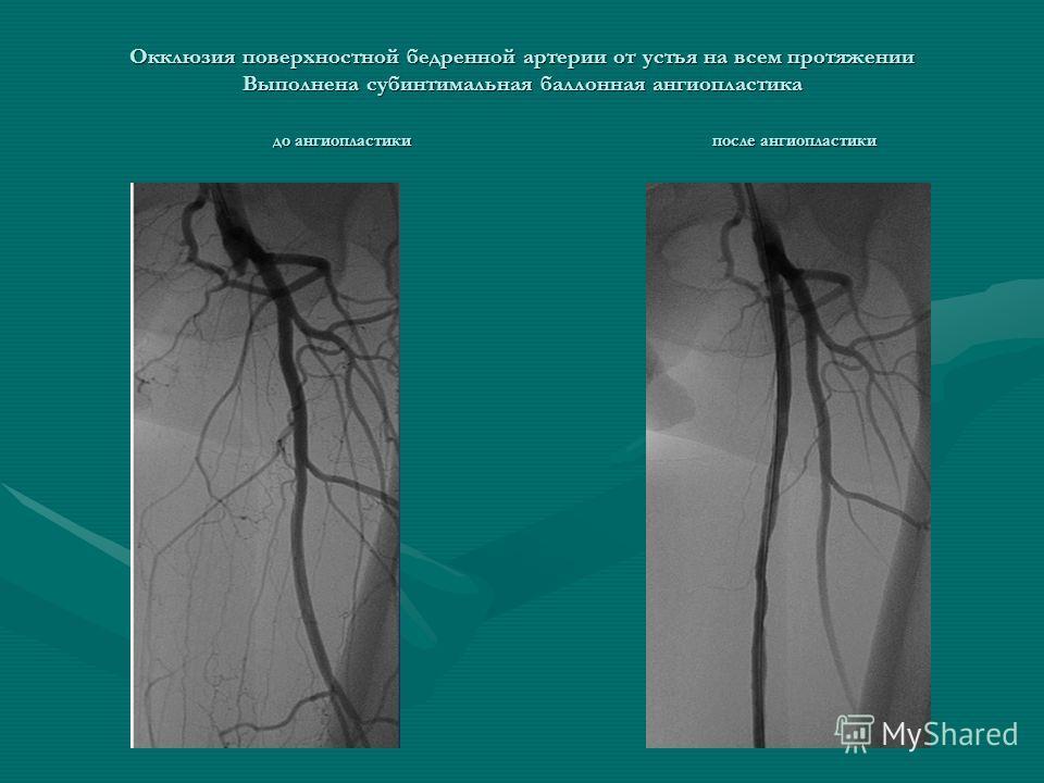 Окклюзия поверхностной бедренной артерии от устья на всем протяжении Выполнена субинтимальная баллонная ангиопластика до ангиопластики после ангиопластики