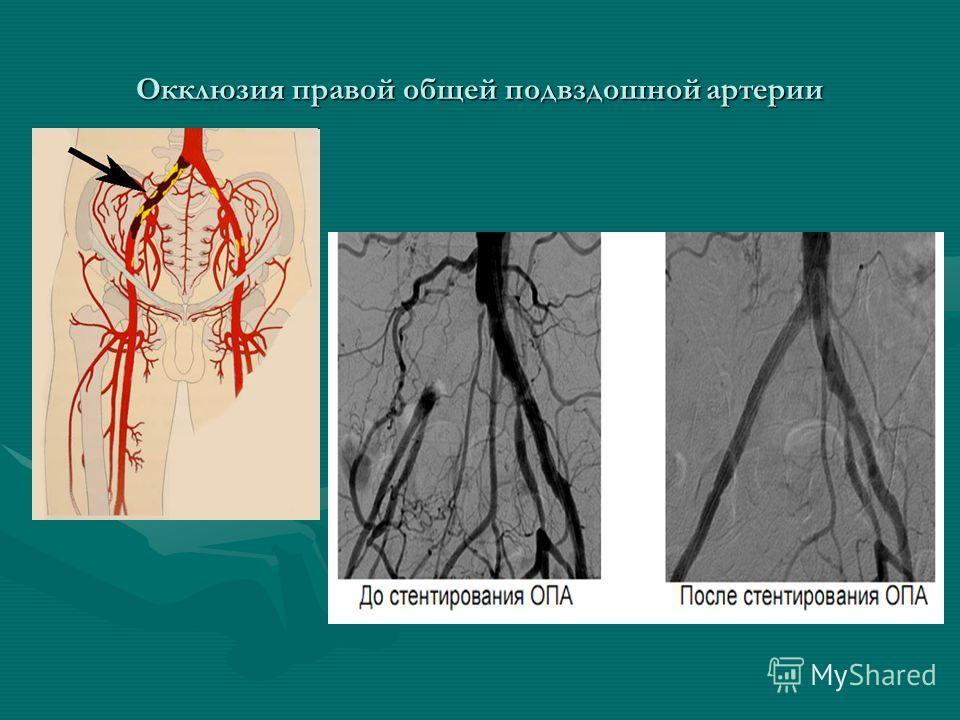 Окклюзия правой общей подвздошной артерии