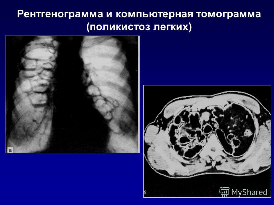 Рентгенограмма и компьютерная томограмма (поликистоз легких)