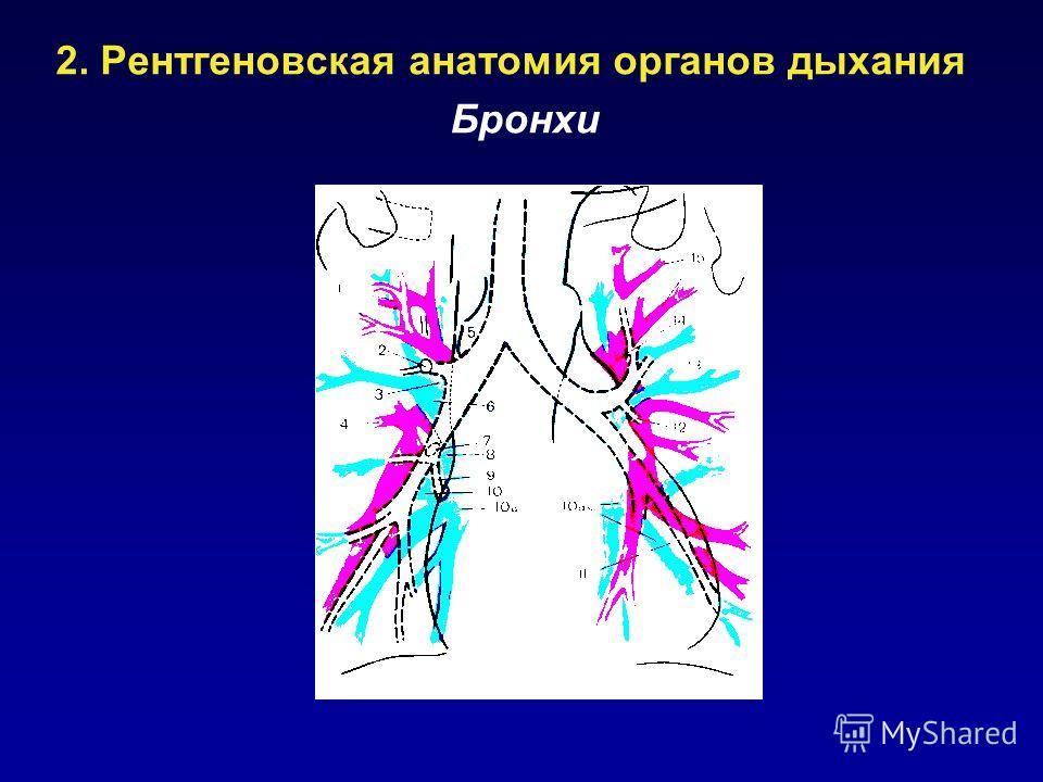 2. Рентгеновская анатомия органов дыхания Бронхи