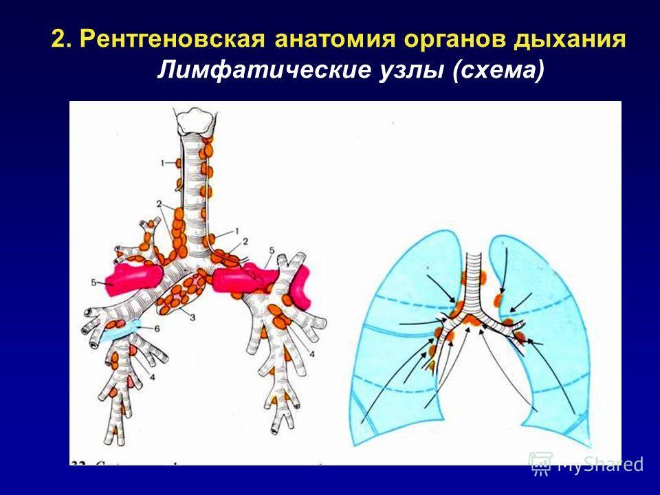 2. Рентгеновская анатомия органов дыхания Лимфатические узлы (схема)