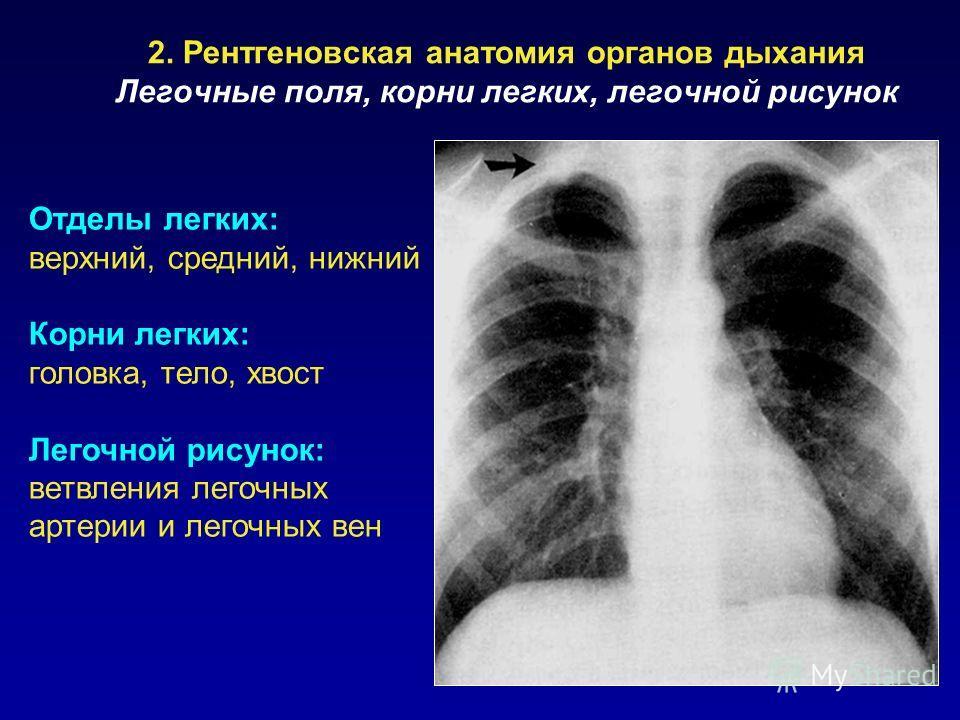 2. Рентгеновская анатомия органов дыхания Легочные поля, корни легких, легочной рисунок Отделы легких: верхний, средний, нижний Корни легких: головка, тело, хвост Легочной рисунок: ветвления легочных артерии и легочных вен