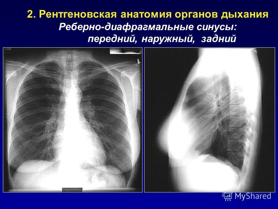 2. Рентгеновская анатомия органов дыхания Реберно-диафрагмальные синусы: передний, наружный, задний