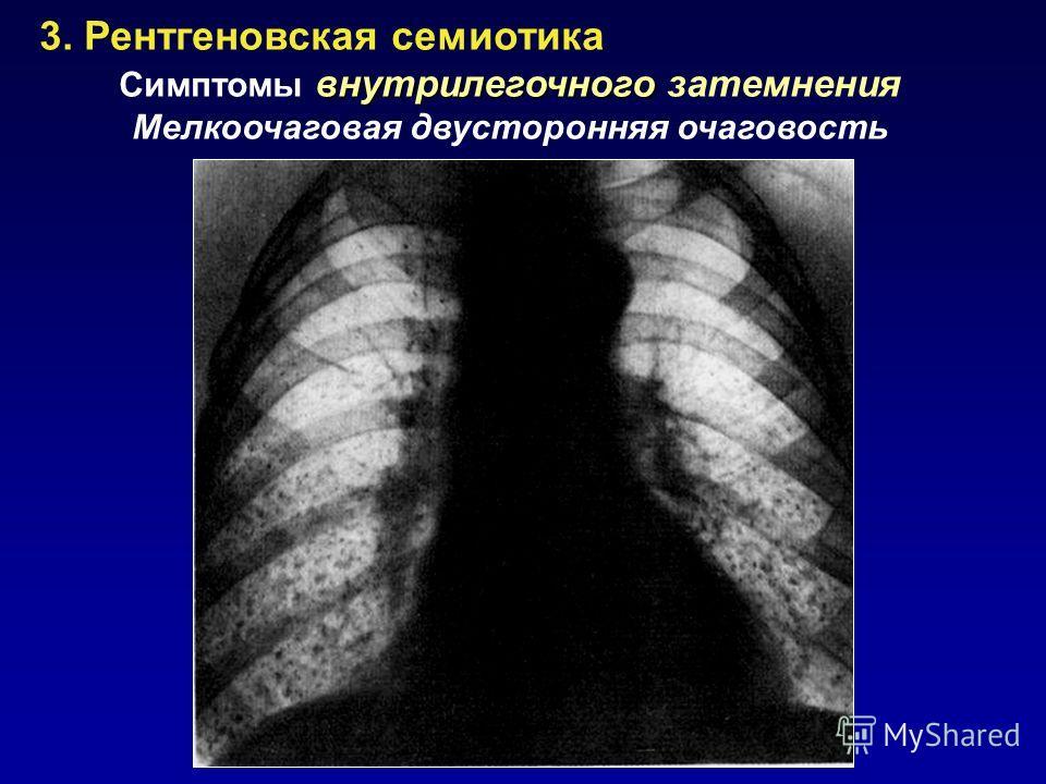 3. Рентгеновская семиотика внутрилегочного Симптомы внутрилегочного затемнения Мелкоочаговая двусторонняя очаговость