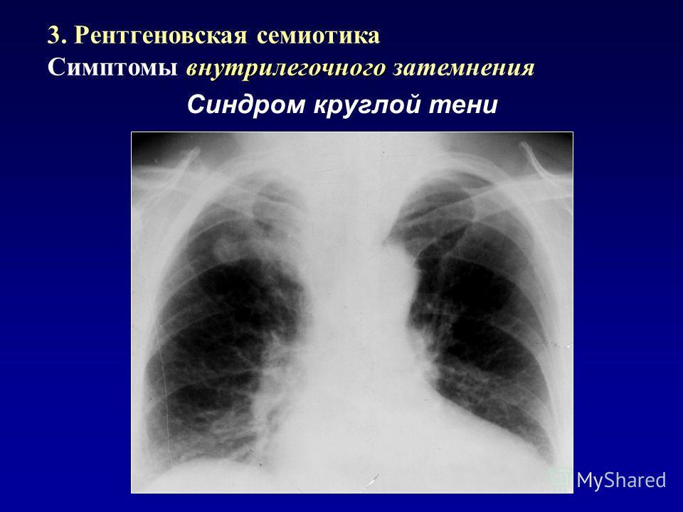Синдром круглой тени 3. Рентгеновская семиотика внутрилегочного Симптомы внутрилегочного затемнения