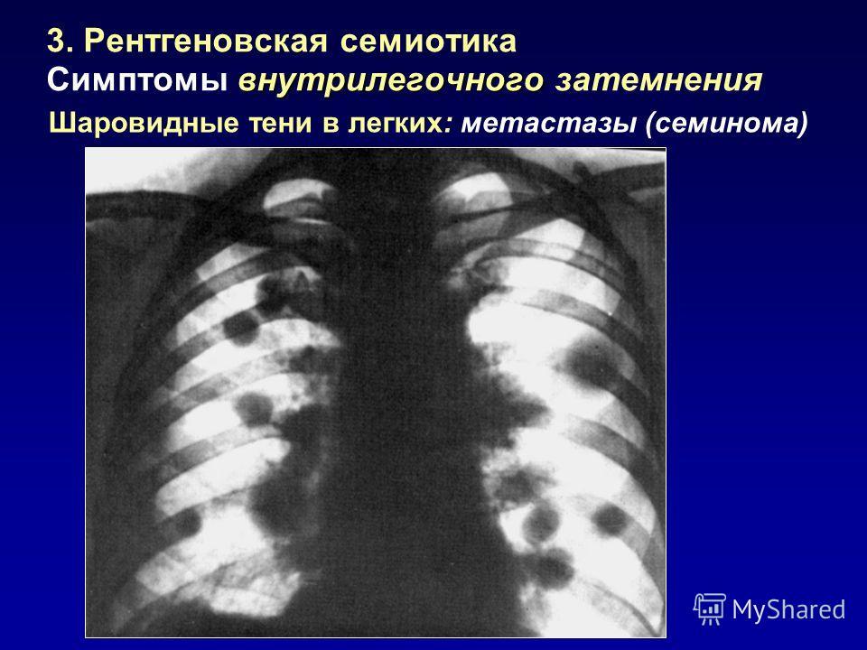 3. Рентгеновская семиотика внутрилегочного Симптомы внутрилегочного затемнения Шаровидные тени в легких: метастазы (семинома)