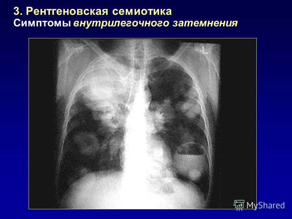 3. Рентгеновская семиотика Симптомы внутрилегочного затемнения