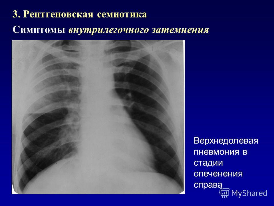 3. Рентгеновская семиотика Симптомы внутрилегочного затемнения Верхнедолевая пневмония в стадии опеченения справа