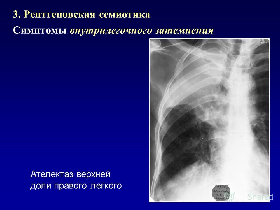 3. Рентгеновская семиотика Симптомы внутрилегочного затемнения Ателектаз верхней доли правого легкого