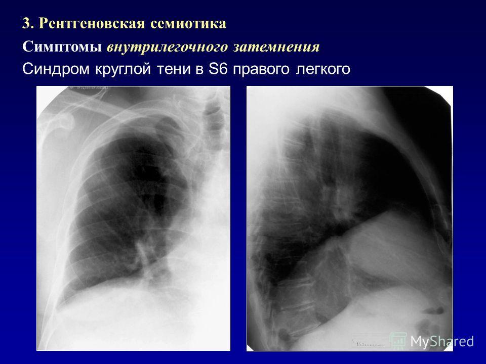 3. Рентгеновская семиотика Симптомы внутрилегочного затемнения Синдром круглой тени в S6 правого легкого
