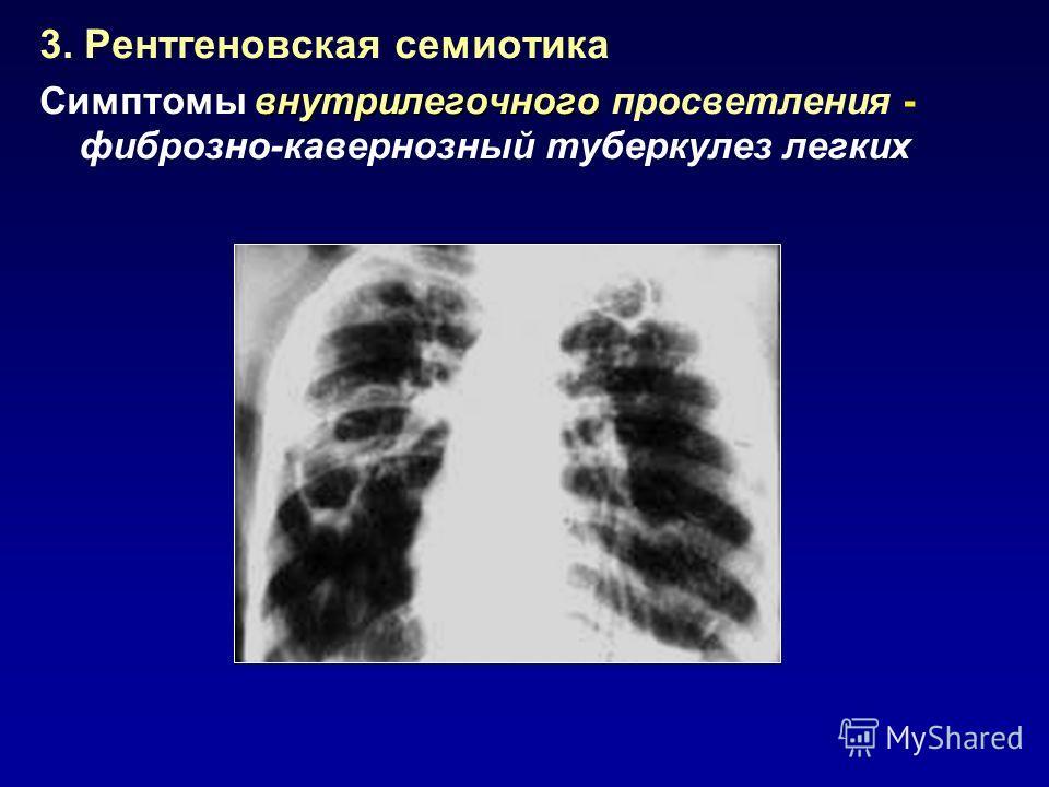3. Рентгеновская семиотика внутрилегочного Симптомы внутрилегочного просветления - фиброзно-кавернозный туберкулез легких