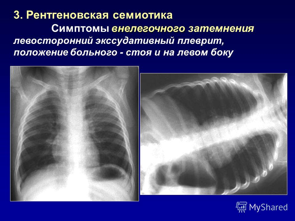 3. Рентгеновская семиотика внелегочного Симптомы внелегочного затемнения левосторонний экссудативный плеврит, положение больного - стоя и на левом боку