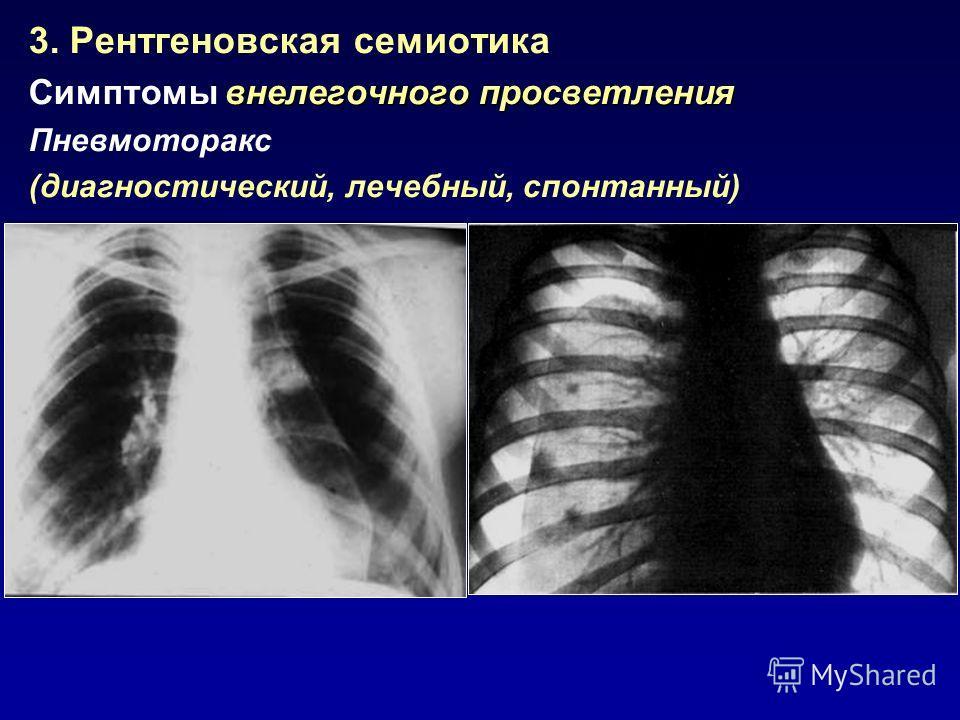 3. Рентгеновская семиотика внелегочногопросветления Симптомы внелегочного просветления Пневмоторакс (диагностический, лечебный, спонтанный)