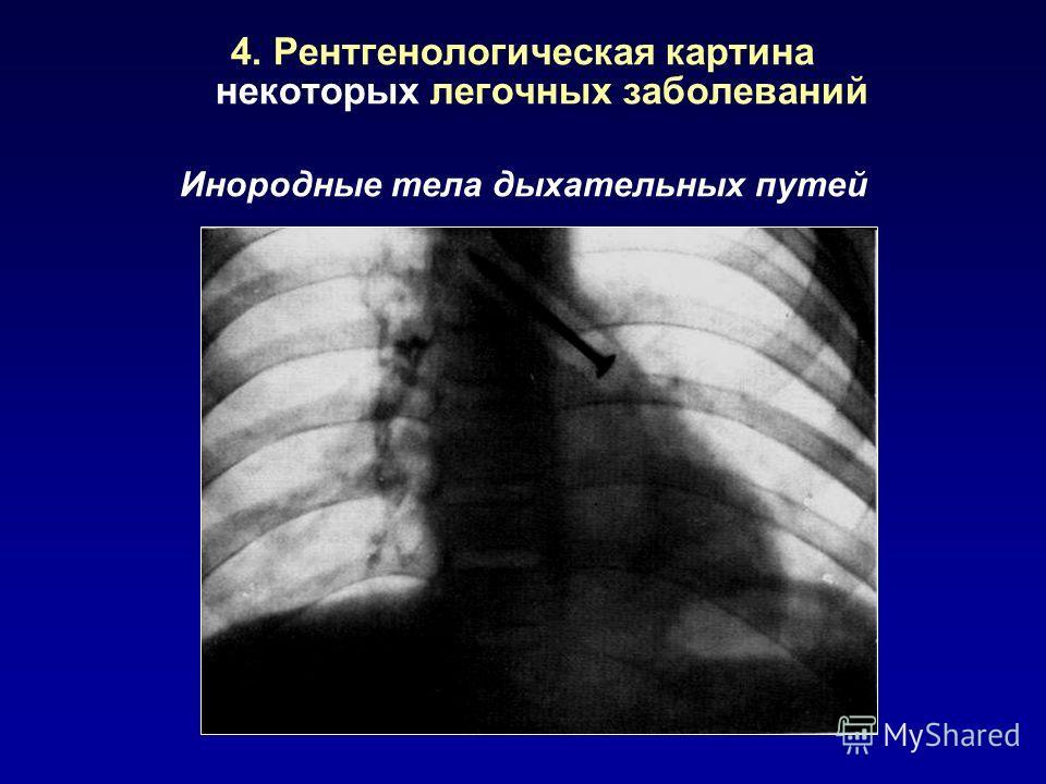 4. Рентгенологическая картина некоторых легочных заболеваний Инородные тела дыхательных путей