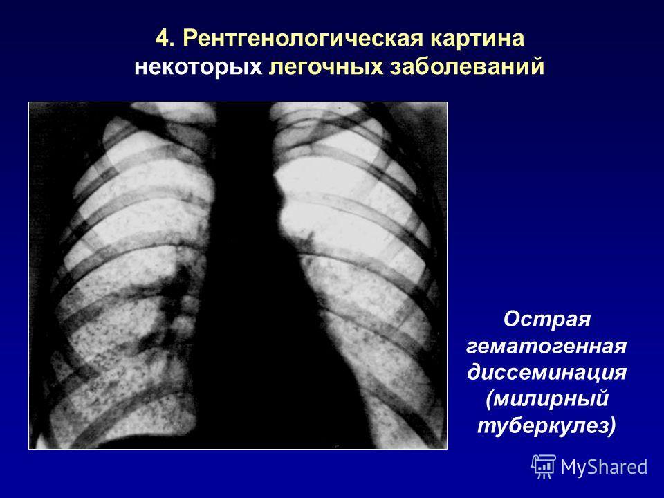 4. Рентгенологическая картина некоторых легочных заболеваний Острая гематогенная диссеминация (милирный туберкулез)