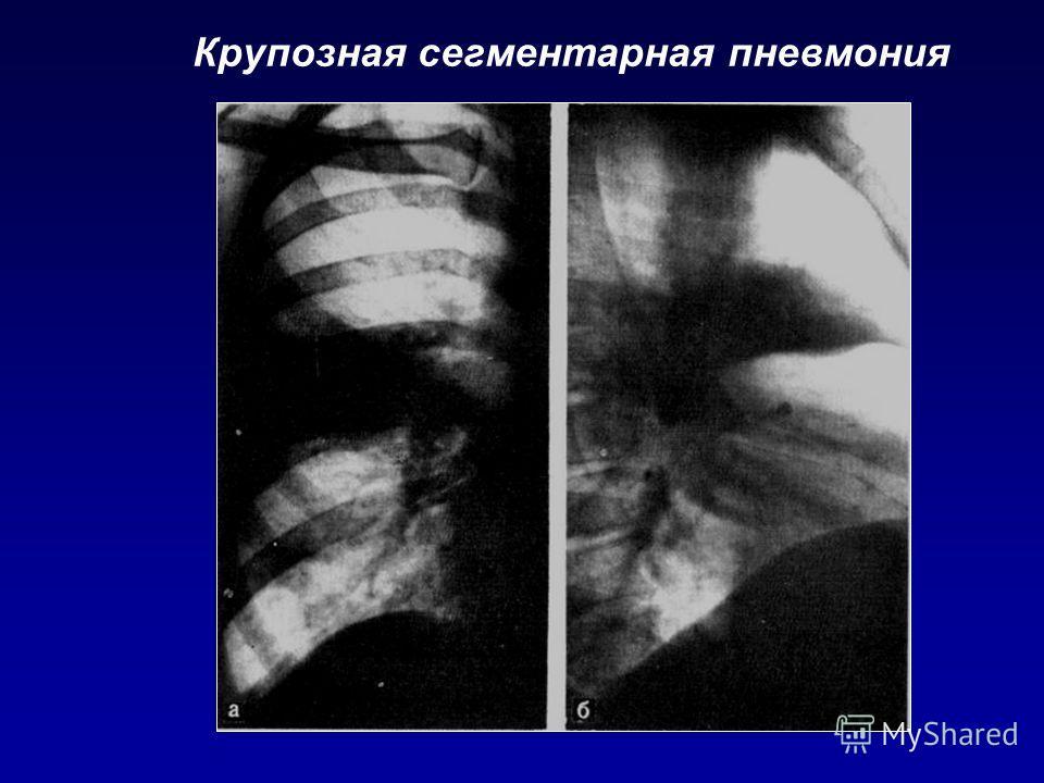 Крупозная сегментарная пневмония