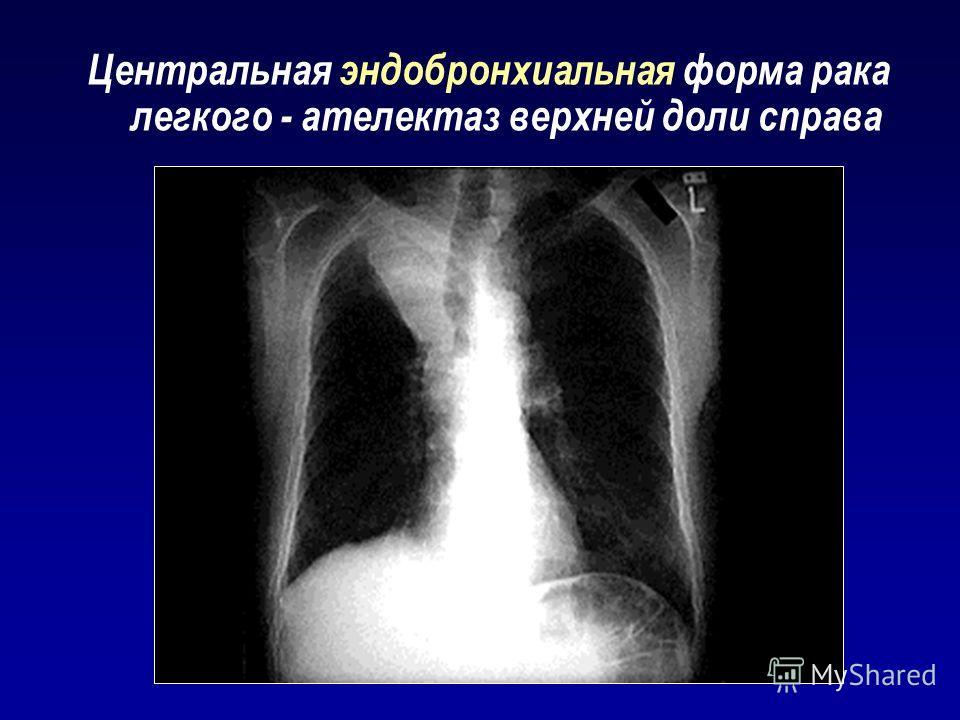 Центральная эндобронхиальная форма рака легкого - ателектаз верхней доли справа