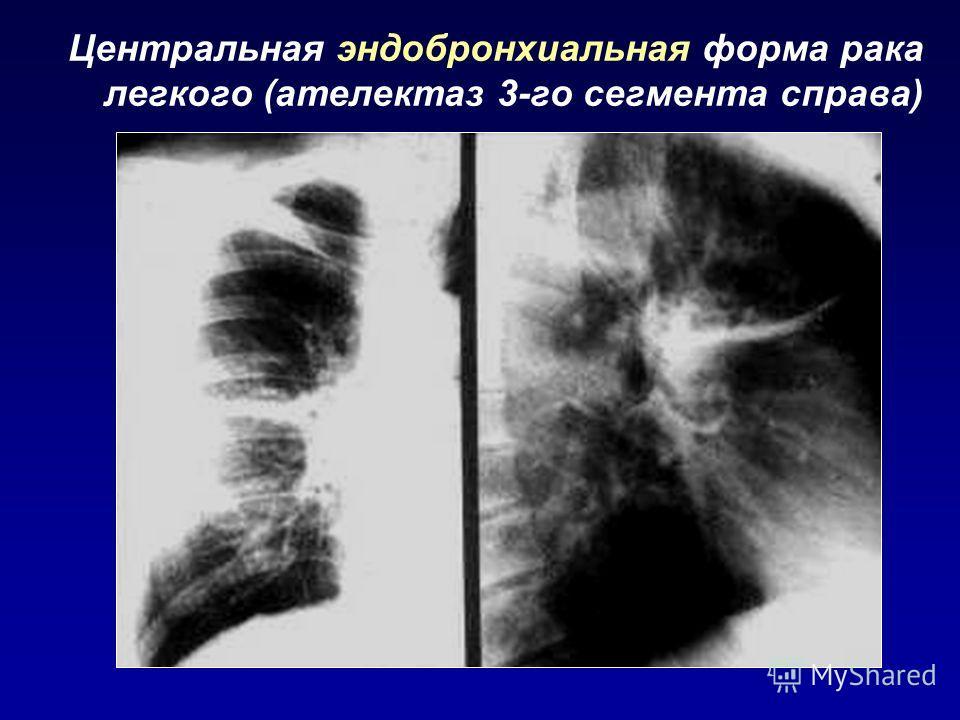 Центральная эндобронхиальная форма рака легкого (ателектаз 3-го сегмента справа)