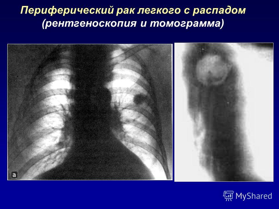 Периферический рак легкого с распадом (рентгеноскопия и томограмма)