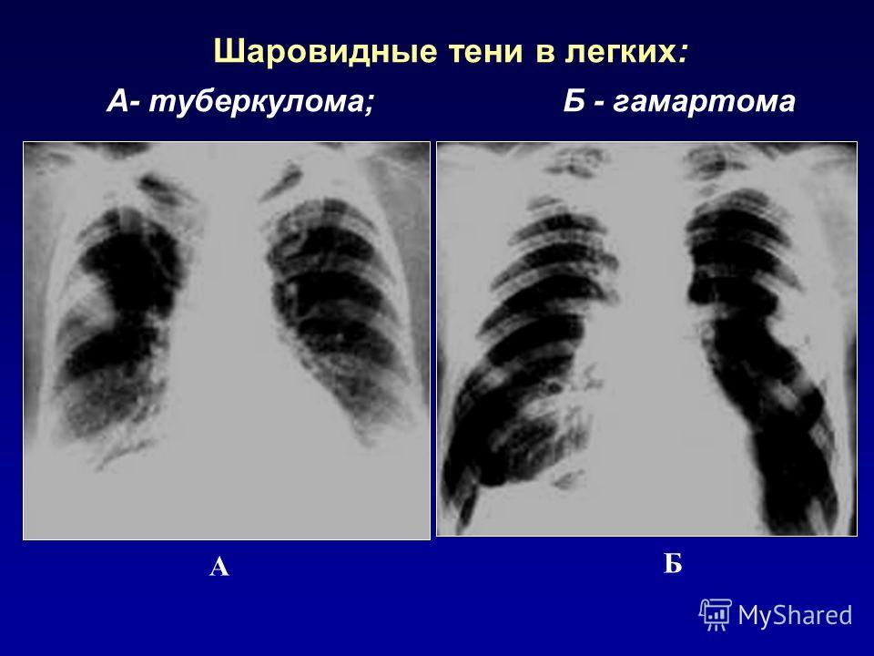 Шаровидные тени в легких: А- туберкулома; Б - гамартома А Б