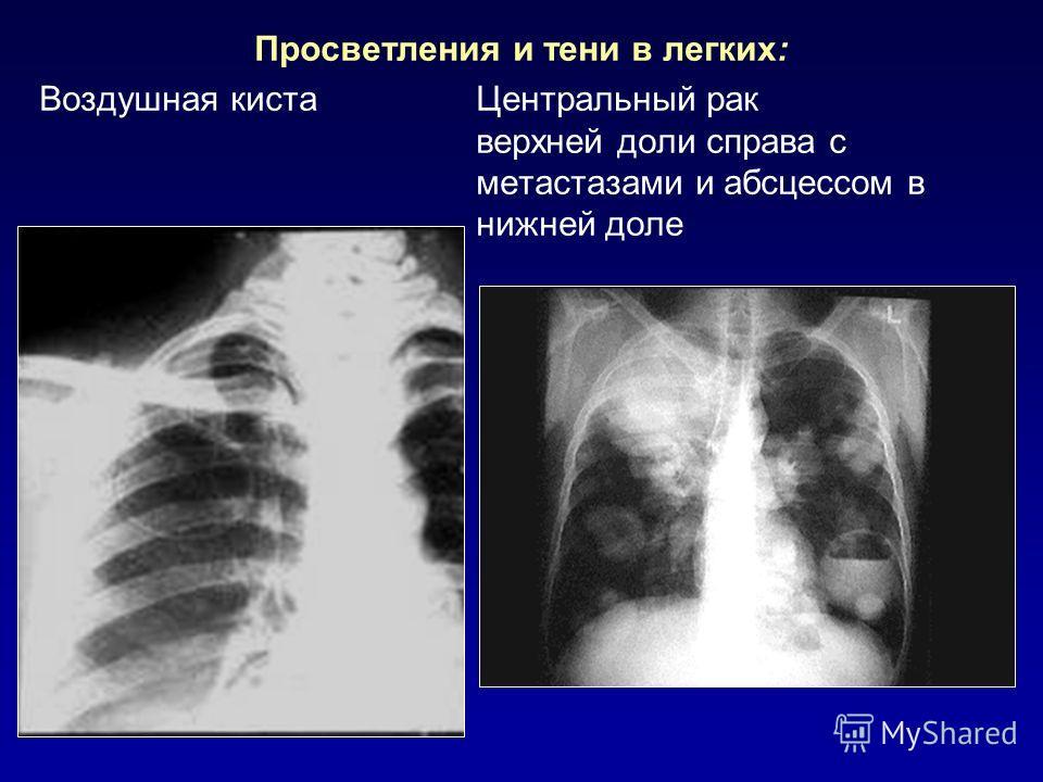 Просветления и тени в легких: Воздушная киста Центральный рак верхней доли справа с метастазами и абсцессом в нижней доле