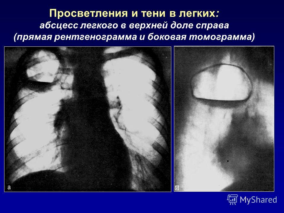 Просветления и тени в легких: абсцесс легкого в верхней доле справа (прямая рентгенограмма и боковая томограмма)