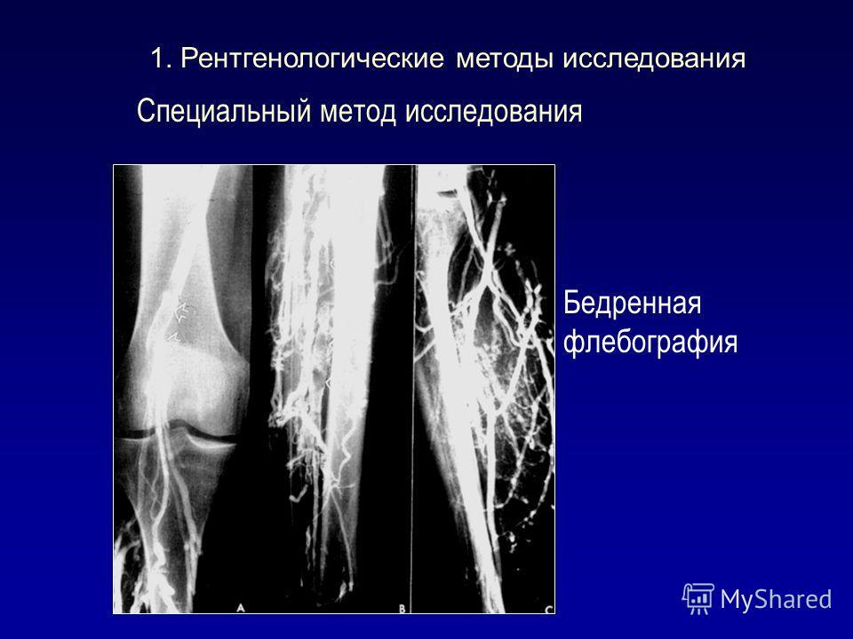 Специальный метод исследования Бедренная флебография 1. Рентгенологические методы исследования