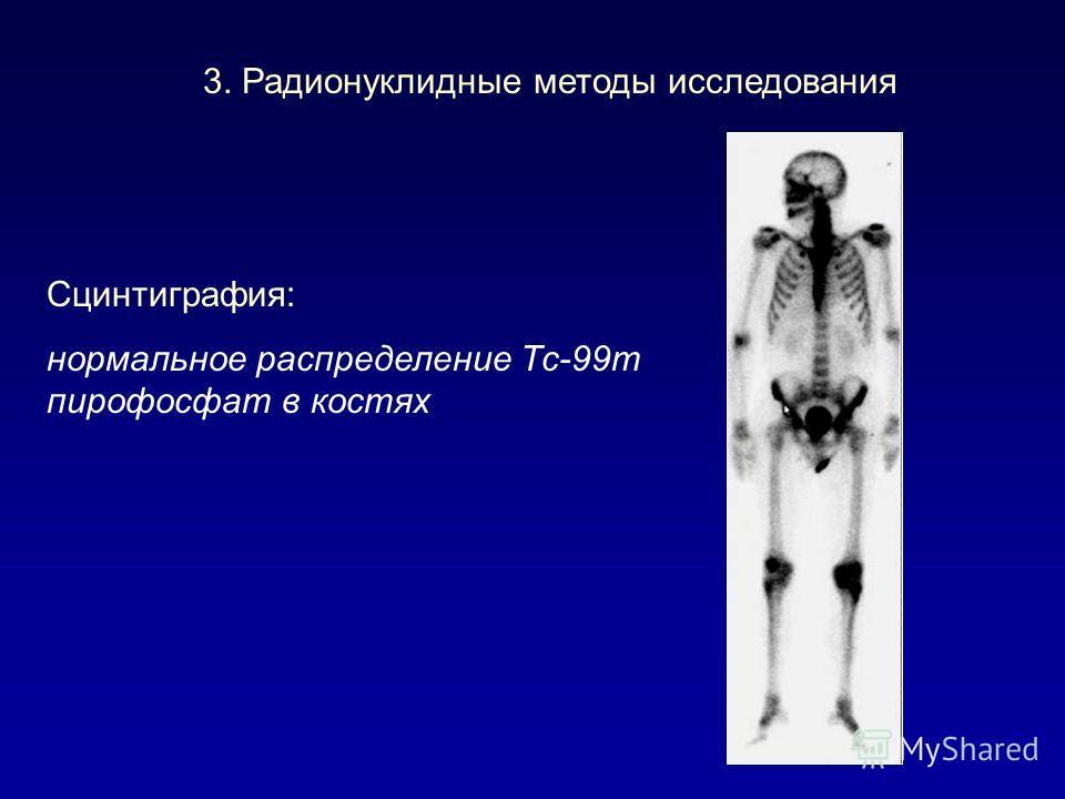 3. Радионуклидные методы исследования Сцинтиграфия: нормальное распределение Тс-99m пирофосфат в костях