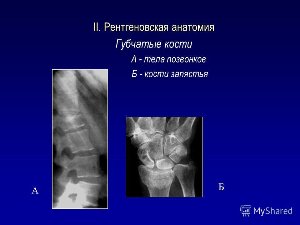 II. Рентгеновская анатомия Губчатые кости А - тела позвонков Б - кости запястья А Б