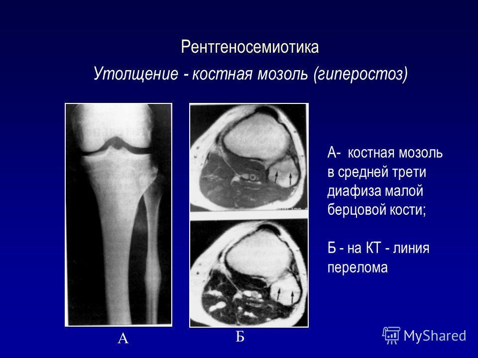 Рентгеносемиотика Утолщение - костная мозоль (гиперостоз) А Б А- костная мозоль в средней трети диафиза малой берцовой кости; Б - на КТ - линия перелома