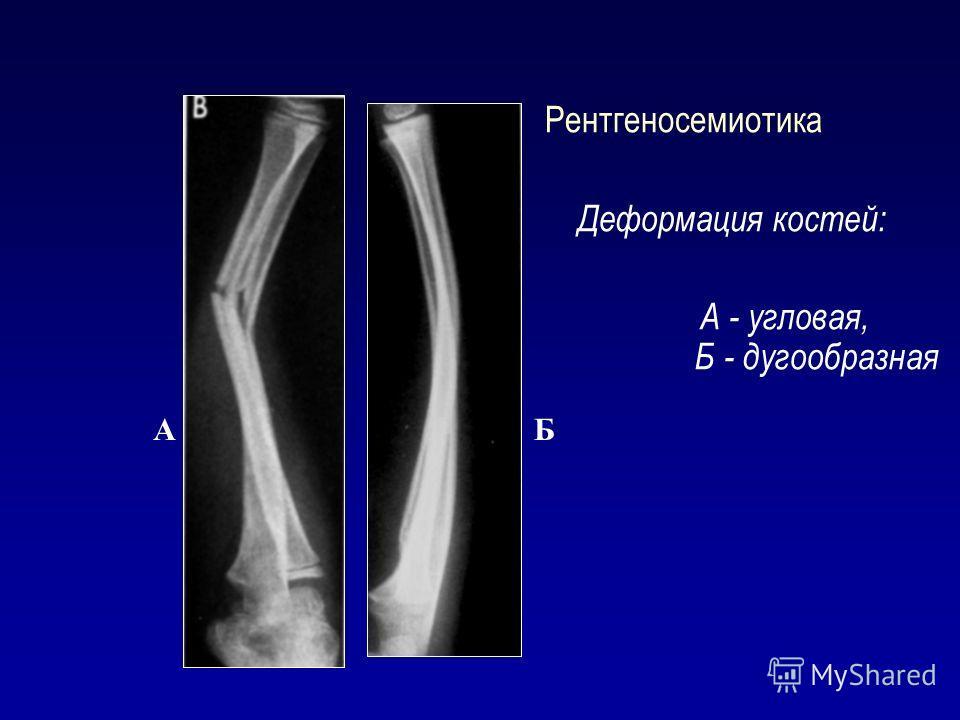 Рентгеносемиотика Деформация костей: А - угловая, Б - дугообразная А Б