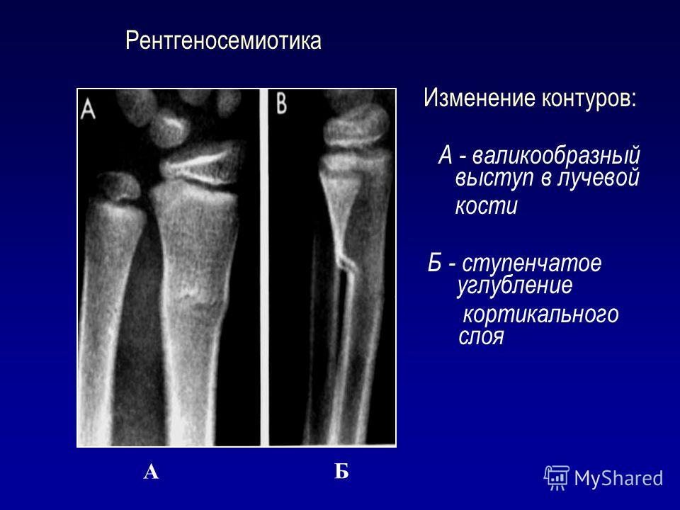 Рентгеносемиотика Изменение контуров: А - валикообразный выступ в лучевой кости Б - ступенчатое углубление кортикального слоя А Б