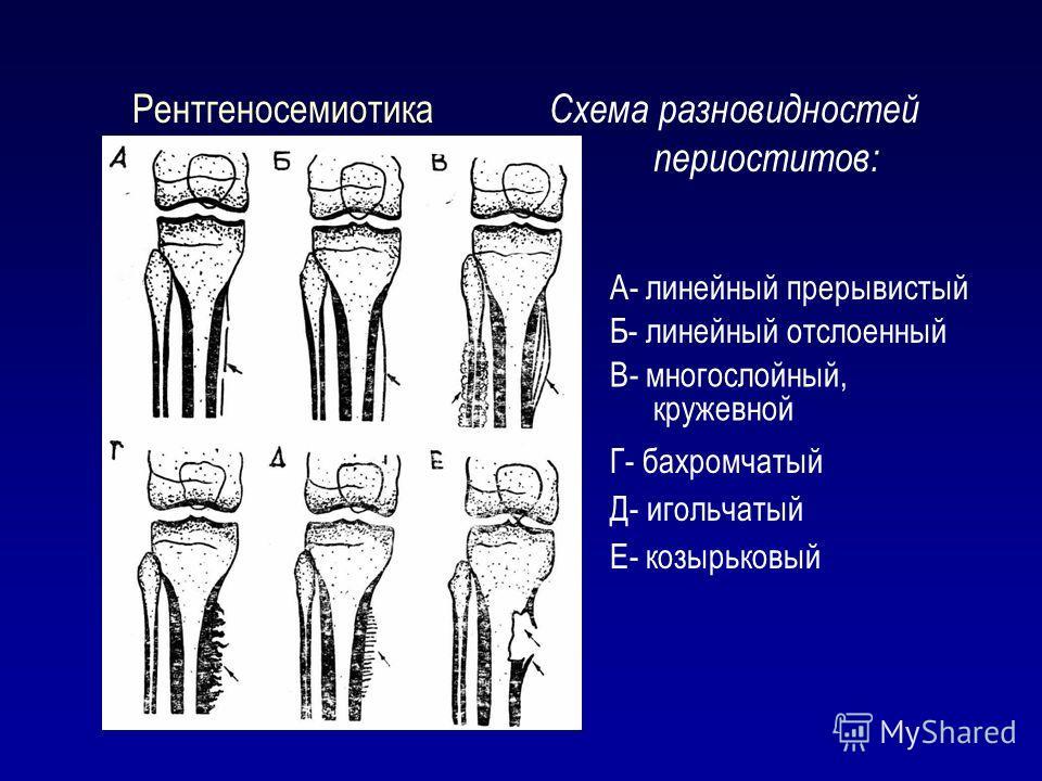 Рентгеносемиотика Схема разновидностей периоститов: А- линейный прерывистый Б- линейный отслоенный В- многослойный, кружевной Г- бахромчатый Д- игольчатый Е- козырьковый