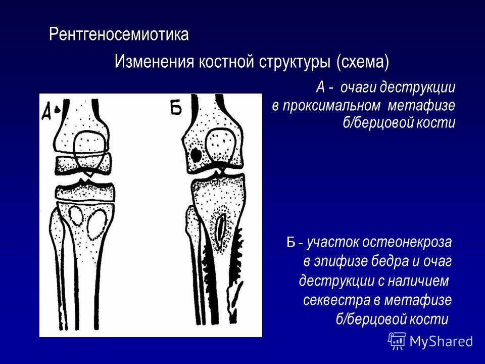 Рентгеносемиотика Изменения костной структуры (схема) А - очаги деструкции в проксимальном метафизе б/берцовой кости Б - участок остеонекроза в эпифизе бедра и очаг деструкции с наличием секвестра в метафизе б/берцовой кости