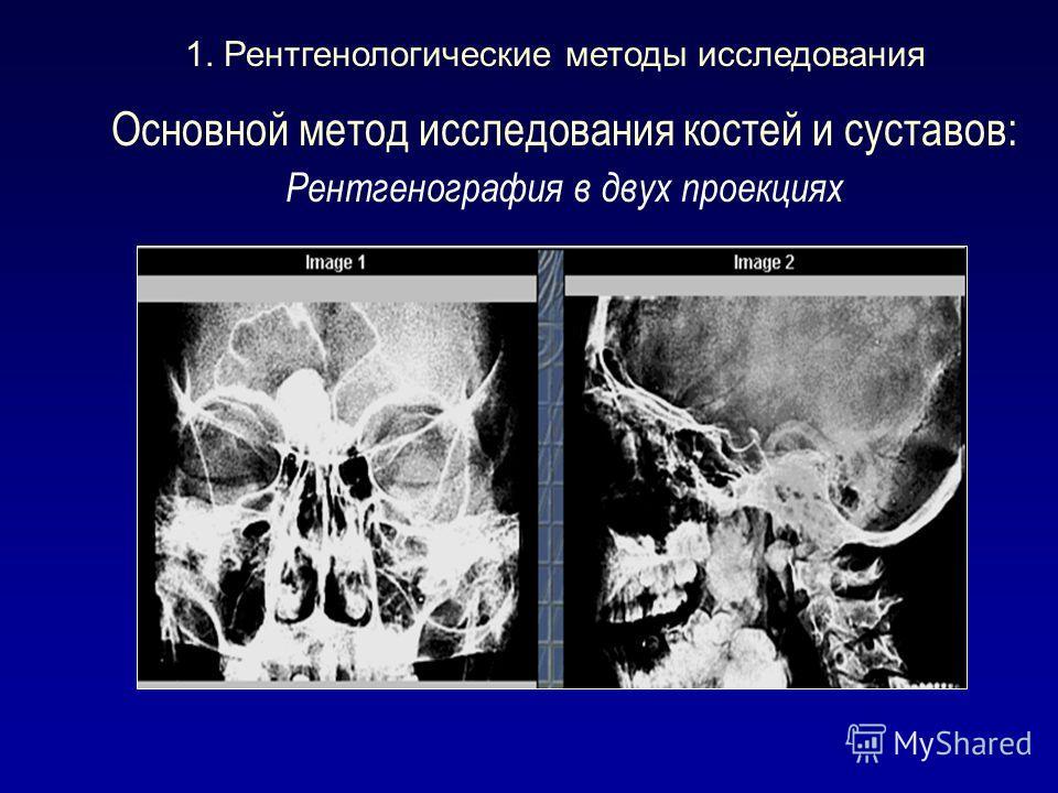 Основной метод исследования костей и суставов: Рентгенография в двух проекциях 1. Рентгенологические методы исследования