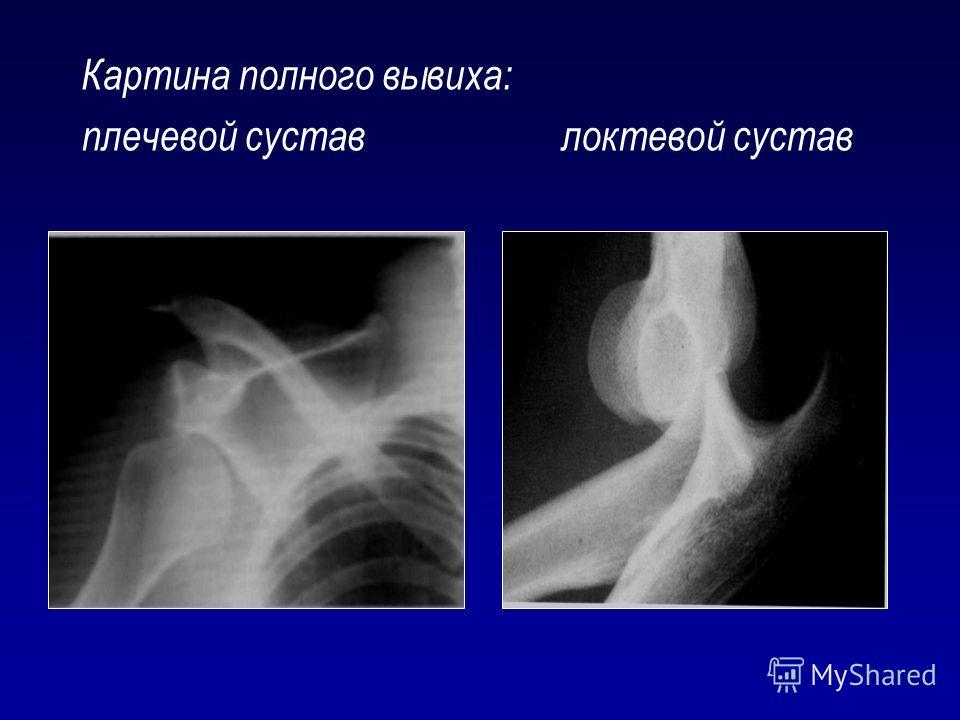 Картина полного вывиха: плечевой суставлоктевой сустав