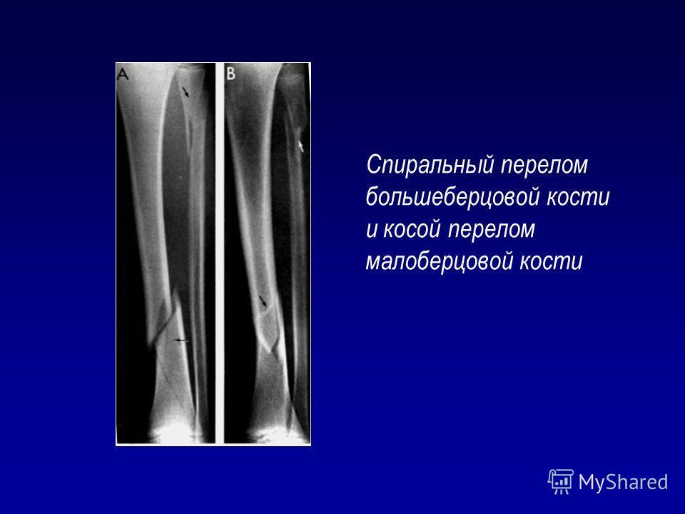 Спиральный перелом большеберцовой кости и косой перелом малоберцовой кости