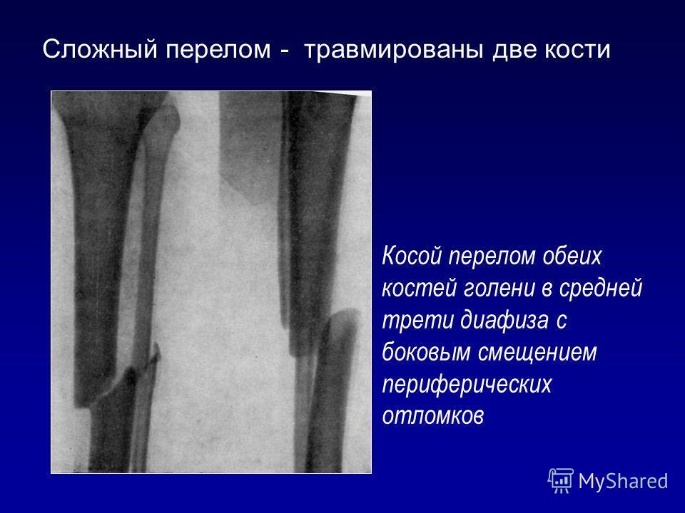 Косой перелом обеих костей голени в средней трети диафиза с боковым смещением периферических отломков Сложный перелом - травмированы две кости