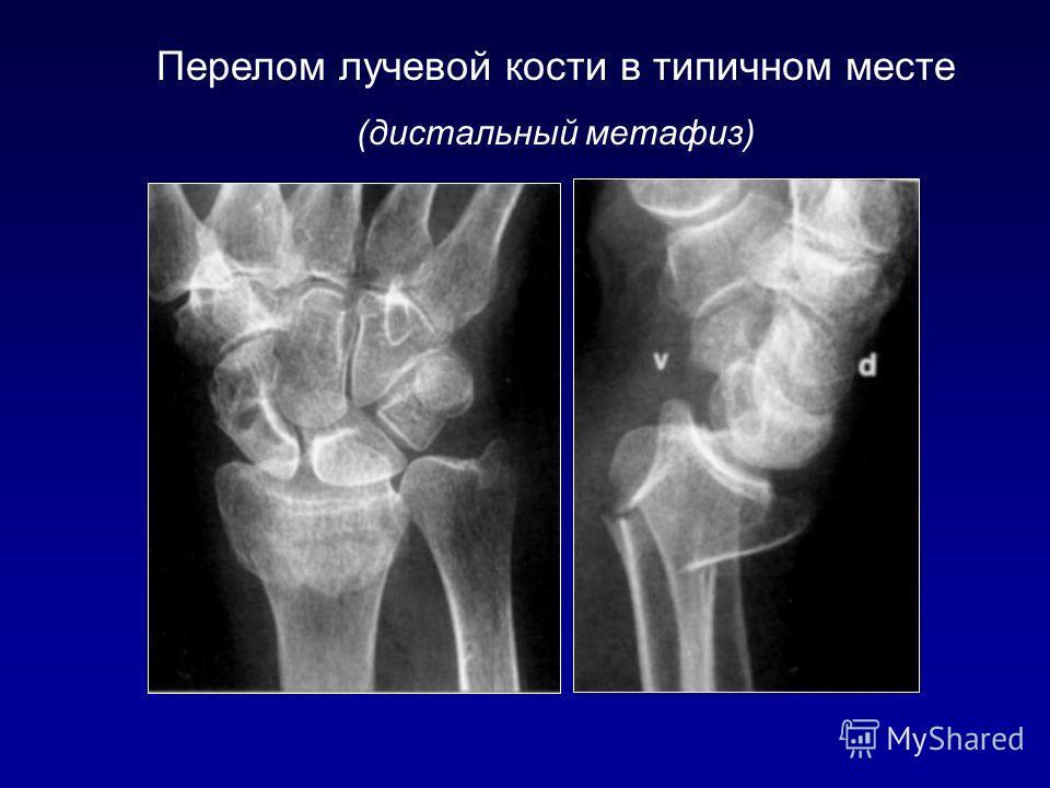 Перелом лучевой кости в типичном месте (дистальный метафиз)