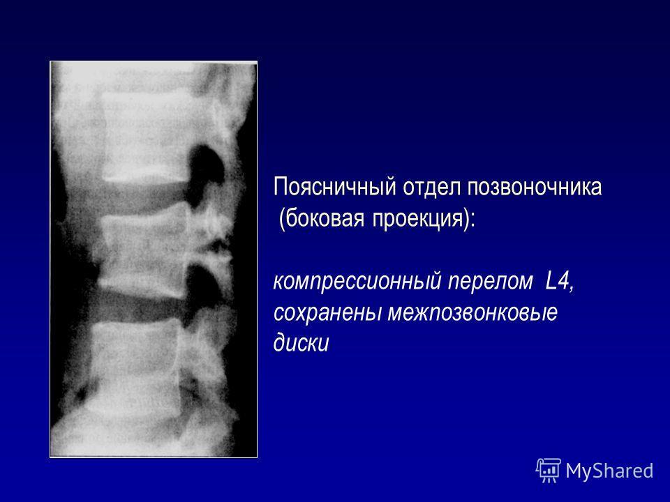 Поясничный отдел позвоночника (боковая проекция): компрессионный перелом L4, сохранены межпозвонковые диски