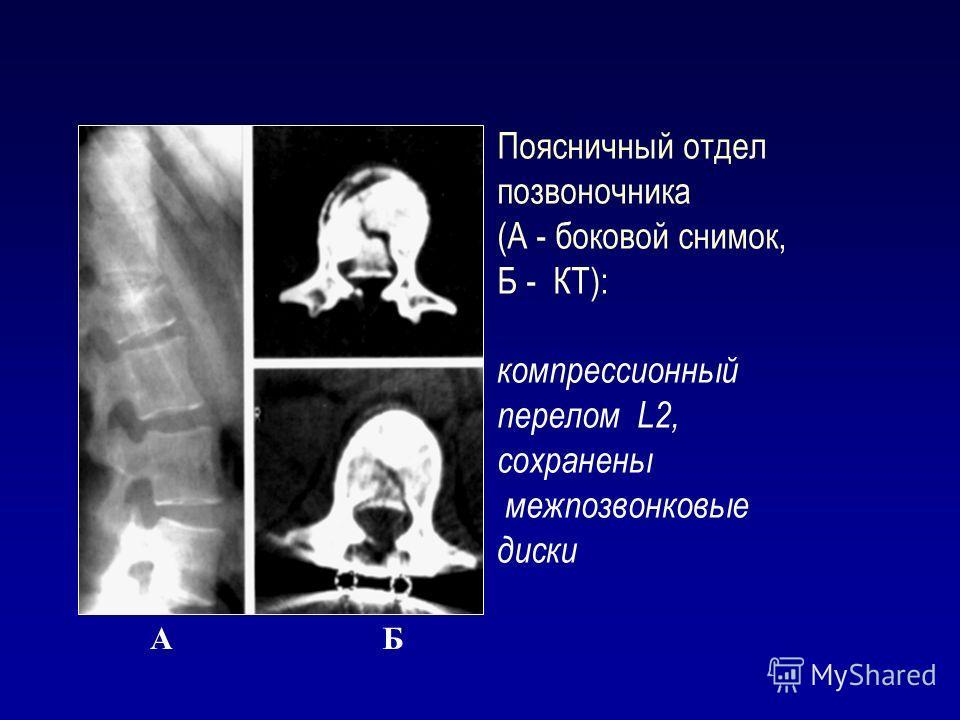 Поясничный отдел позвоночника (А - боковой снимок, Б - КТ): компрессионный перелом L2, сохранены межпозвонковые диски АБ